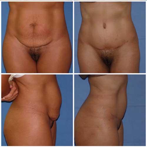 docteur robert zerbib chirurgie plastique chirurgien esthetique paris 16 75116 abdominoplastie plastie abdominale 2