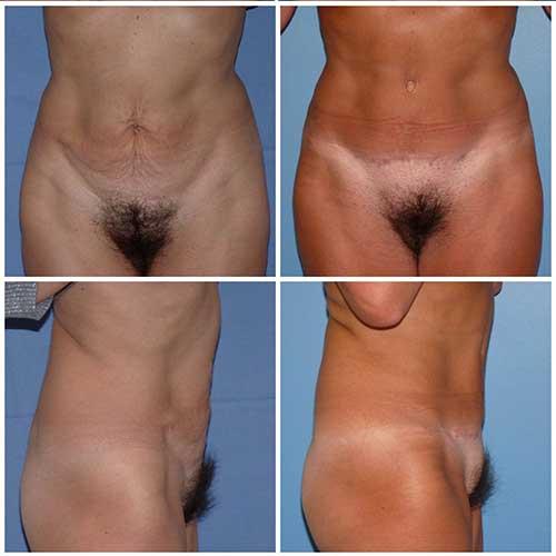 docteur robert zerbib chirurgie plastique chirurgien esthetique paris 16 75116 abdominoplastie plastie abdominale 3