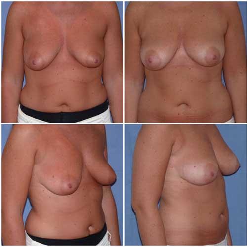 docteur robert zerbib chirurgie plastique chirurgien esthetique paris 16 75116 lipofilling mammaire 1