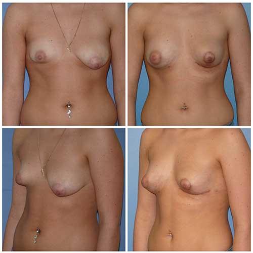 docteur robert zerbib chirurgie plastique chirurgien esthetique paris 16 75116 lipofilling mammaire 2