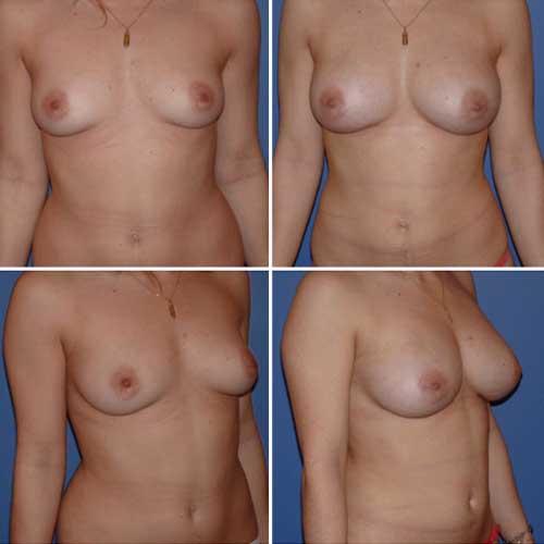 docteur robert zerbib chirurgie plastique chirurgien esthetique paris 16 75116 lipofilling mammaire 3