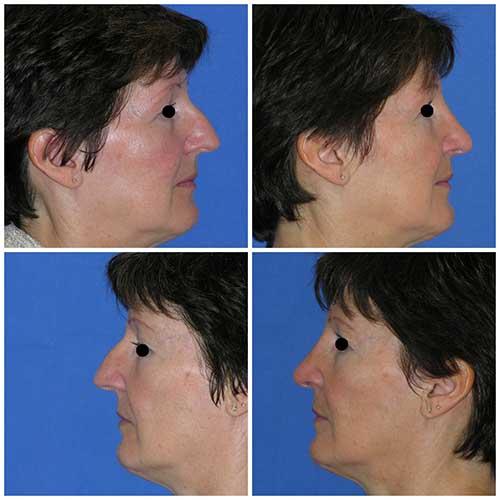 docteur robert zerbib chirurgie plastique chirurgien esthetique paris 16 75116 rhinoplastie esthetique chirurgie du nez paris 16 1