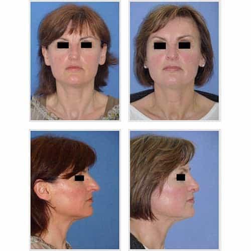 docteur robert zerbib chirurgie plastique chirurgien esthetique paris 16 75116 rhinoplastie esthetique chirurgie du nez paris 16 11