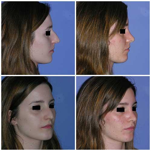 docteur robert zerbib chirurgie plastique chirurgien esthetique paris 16 75116 rhinoplastie esthetique chirurgie du nez paris 16 2