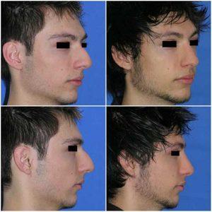docteur robert zerbib chirurgie plastique chirurgien esthetique paris 16 75116 rhinoplastie esthetique chirurgie du nez paris 16 4