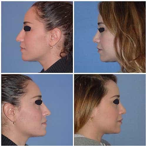 docteur robert zerbib chirurgie plastique chirurgien esthetique paris 16 75116 rhinoplastie esthetique chirurgie du nez paris 16 5