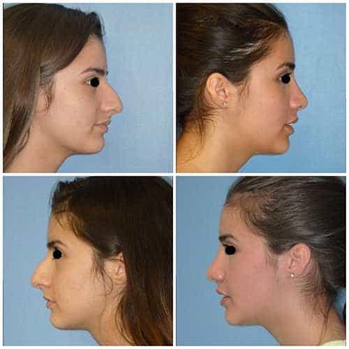 docteur robert zerbib chirurgie plastique chirurgien esthetique paris 16 75116 rhinoplastie esthetique chirurgie du nez paris 16 8