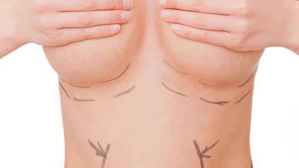 Docteur Robert Zerbib chirurgien Paris 16 75116 75016 Seins Lifting des seins