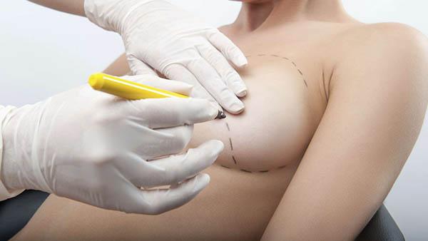 Docteur Robert Zerbib chirurgien Paris 16 75116 75016 Seins Reduction mammaire