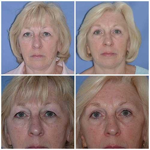 docteur robert zerbib chirurgie plastique chirurgien esthetique paris 16 75116 blepharoplastie chirurgie des paupieres chirurgie des yeux operation des yeux regard