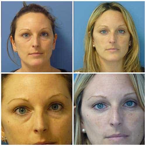 docteur robert zerbib chirurgie plastique chirurgien esthetique paris 16 75116 blepharoplastie chirurgie des paupieres chirurgie des yeux operation des yeux regard 2