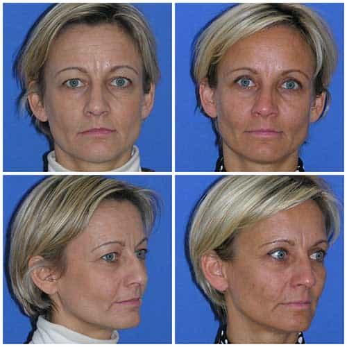 docteur robert zerbib chirurgie plastique chirurgien esthetique paris 16 75116 blepharoplastie chirurgie des paupieres chirurgie des yeux operation des yeux regard paris 16
