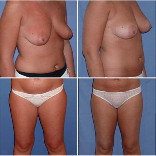 docteur robert zerbib chirurgie plastique chirurgien esthetique paris 16 75116 chirurgie esthetique des seins lipofilling mammaire 5