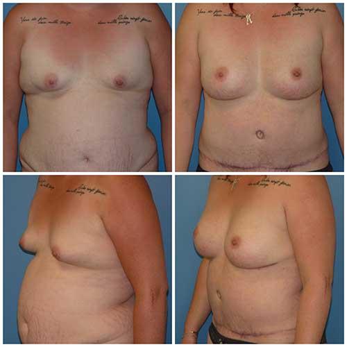 docteur robert zerbib chirurgie plastique chirurgien esthetique paris 16 75116 chirurgie esthetique des seins lipofilling mammaire 6