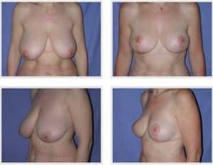 docteur robert zerbib chirurgie plastique chirurgien esthetique paris 16 75116 chirurgie esthetique des seins reduction mammaire pour hypertrophie mammaire plastie mammaire de reduction 7