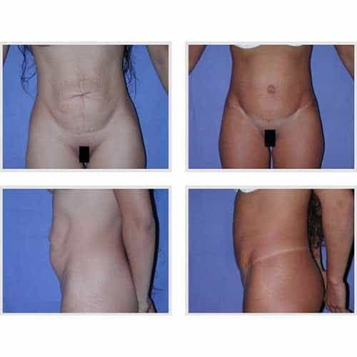 docteur robert zerbib chirurgie plastique chirurgien esthetique paris 16 75116 chirurgie esthetique du corps silhouette abdominoplastie plastie abdominale paris 13