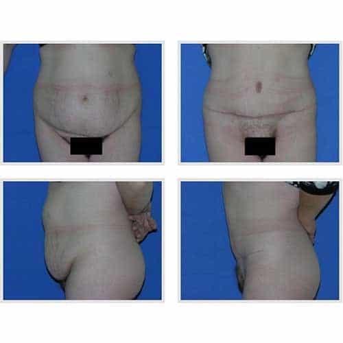docteur robert zerbib chirurgie plastique chirurgien esthetique paris 16 75116 chirurgie esthetique du corps silhouette abdominoplastie plastie abdominale paris 15