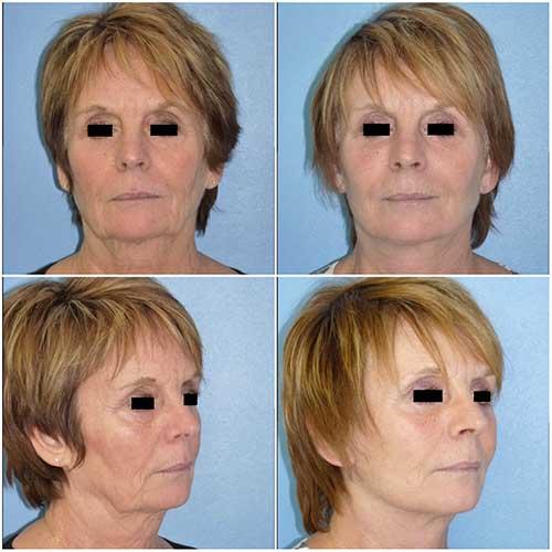 docteur robert zerbib chirurgie plastique chirurgien esthetique paris 16 75116 lifting du visage lifting cervico-facial lifting centro-facial paris 16 1