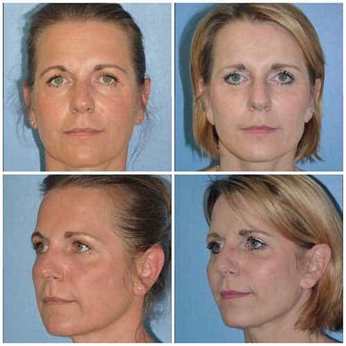 docteur robert zerbib chirurgie plastique chirurgien esthetique paris 16 75116 lifting du visage lifting cervico-facial lifting centro-facial paris 16 2
