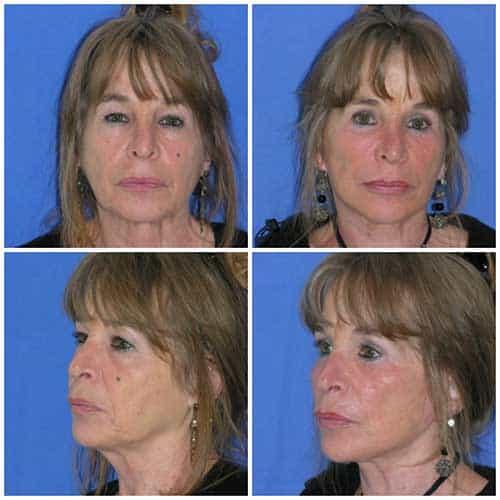 docteur robert zerbib chirurgie plastique chirurgien esthetique paris 16 75116 lifting du visage lifting cervico-facial lifting centro-facial paris 16 4