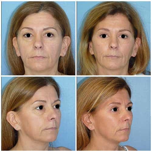 docteur robert zerbib chirurgie plastique chirurgien esthetique paris 16 75116 lifting du visage lifting cervico-facial lifting centro-facial paris 16 5