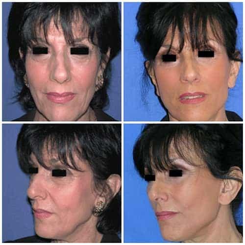docteur robert zerbib chirurgie plastique chirurgien esthetique paris 16 75116 lifting du visage lifting cervico-facial lifting centro-facial paris 16 6