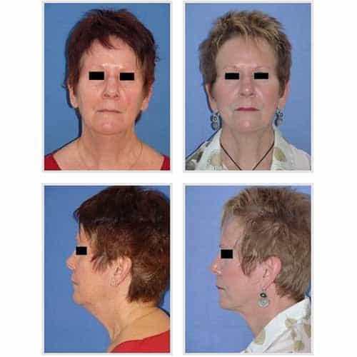 docteur robert zerbib chirurgie plastique chirurgien esthetique paris 16 75116 lifting du visage lifting cervico-facial lifting centro-facial paris 16 7