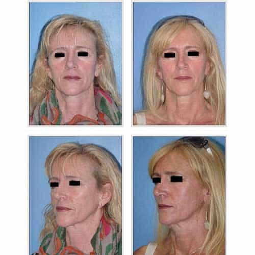 docteur robert zerbib chirurgie plastique chirurgien esthetique paris 16 75116 lipostructure 2