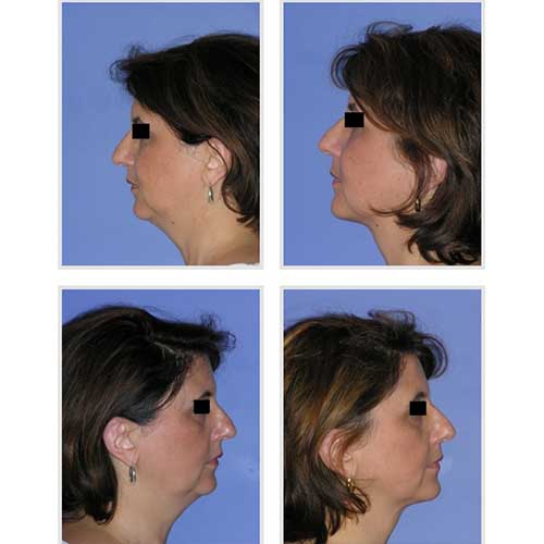 docteur robert zerbib chirurgie plastique chirurgien esthetique paris 16 75116 liposuccion visage 2