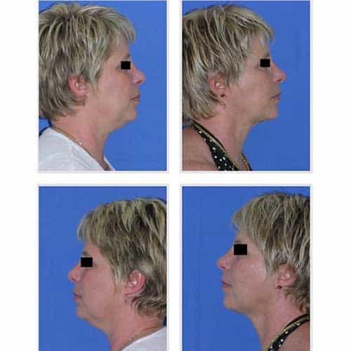 docteur robert zerbib chirurgie plastique chirurgien esthetique paris 16 75116 liposuccion visage 3