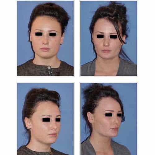 docteur robert zerbib chirurgie plastique chirurgien esthetique paris 16 75116 liposuccion visage et ablation des boules de bichat 1
