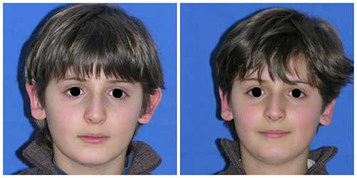 docteur robert zerbib chirurgie plastique chirurgien esthetique paris 16 75116 otoplastie oreilles decollees operation paris 16 2