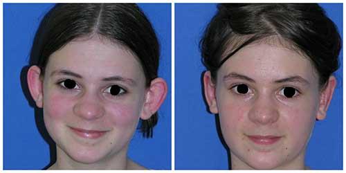 docteur robert zerbib chirurgie plastique chirurgien esthetique paris 16 75116 otoplastie oreilles decollees operation paris 16 3