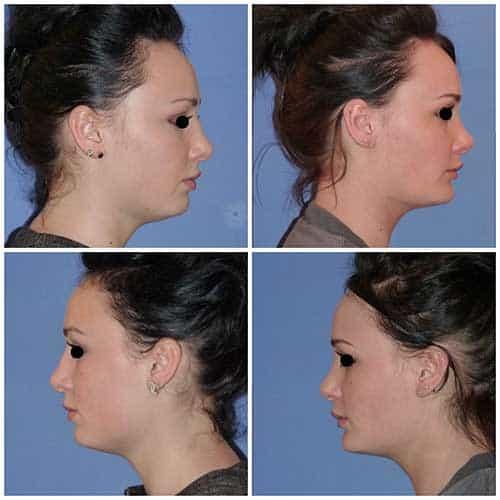 docteur robert zerbib chirurgie plastique chirurgien esthetique paris 16 75116 profiloplastie rhinoplastie genioplastie chirurgie du nez chirurgie du menton paris 16