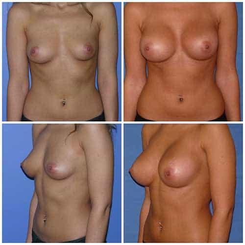dr robert zerbib chirurgie plastique chirurgien esthetique paris 16 75116 chirurgie esthetique des seins augmentation mammaire par protheses mammaires paris 16 1