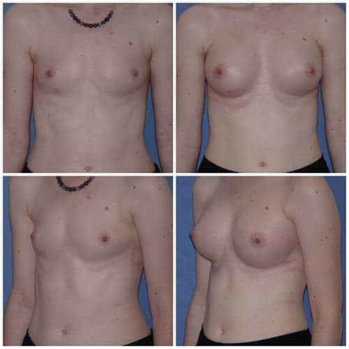 dr robert zerbib chirurgie plastique chirurgien esthetique paris 16 75116 chirurgie esthetique des seins augmentation mammaire par protheses mammaires paris 16 11