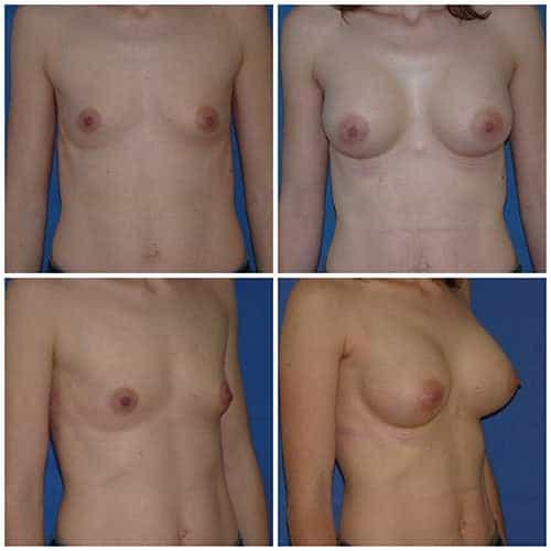 dr robert zerbib chirurgie plastique chirurgien esthetique paris 16 75116 chirurgie esthetique des seins augmentation mammaire par protheses mammaires paris 16 12