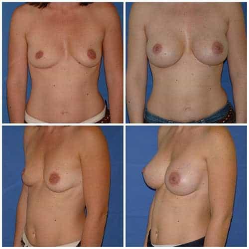 dr robert zerbib chirurgie plastique chirurgien esthetique paris 16 75116 chirurgie esthetique des seins augmentation mammaire par protheses mammaires paris 16 14