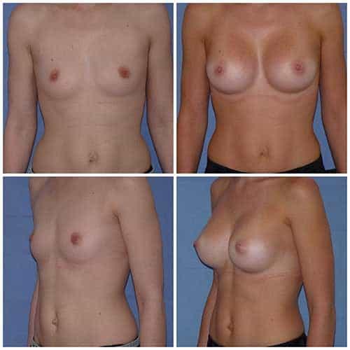 dr robert zerbib chirurgie plastique chirurgien esthetique paris 16 75116 chirurgie esthetique des seins augmentation mammaire par protheses mammaires paris 16 17