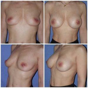 dr robert zerbib chirurgie plastique chirurgien esthetique paris 16 75116 chirurgie esthetique des seins augmentation mammaire par protheses mammaires paris 16 19