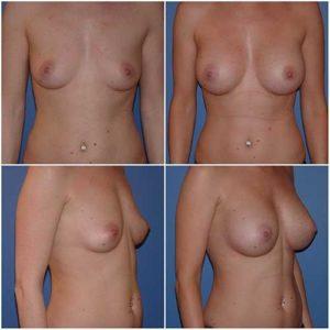 dr robert zerbib chirurgie plastique chirurgien esthetique paris 16 75116 chirurgie esthetique des seins augmentation mammaire par protheses mammaires paris 16 22
