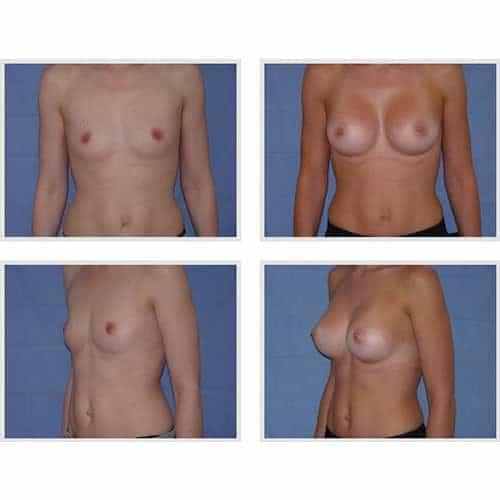 dr robert zerbib chirurgie plastique chirurgien esthetique paris 16 75116 chirurgie esthetique des seins augmentation mammaire par protheses mammaires paris 16 23