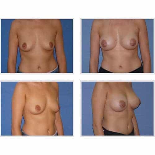 dr robert zerbib chirurgie plastique chirurgien esthetique paris 16 75116 chirurgie esthetique des seins augmentation mammaire par protheses mammaires paris 16 24