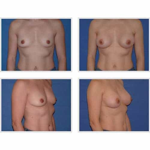 dr robert zerbib chirurgie plastique chirurgien esthetique paris 16 75116 chirurgie esthetique des seins augmentation mammaire par protheses mammaires paris 16 28