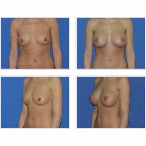 dr robert zerbib chirurgie plastique chirurgien esthetique paris 16 75116 chirurgie esthetique des seins augmentation mammaire par protheses mammaires paris 16 29