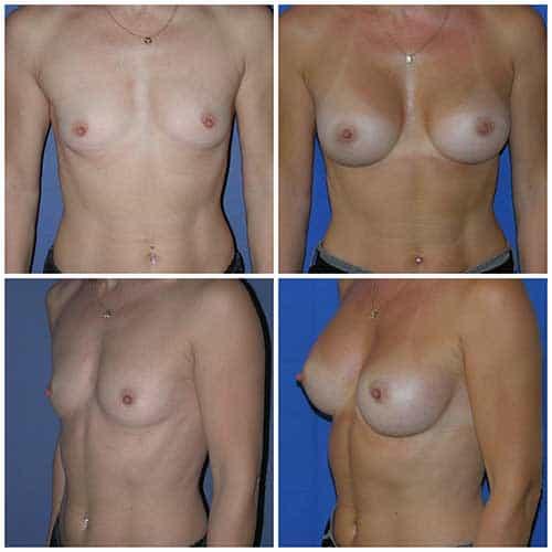 dr robert zerbib chirurgie plastique chirurgien esthetique paris 16 75116 chirurgie esthetique des seins augmentation mammaire par protheses mammaires paris 16 3