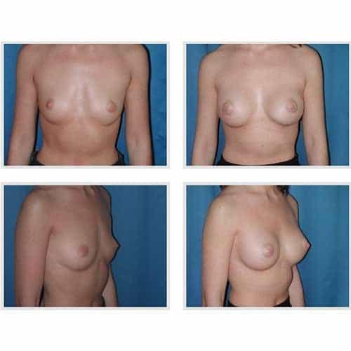 dr robert zerbib chirurgie plastique chirurgien esthetique paris 16 75116 chirurgie esthetique des seins augmentation mammaire par protheses mammaires paris 16 30