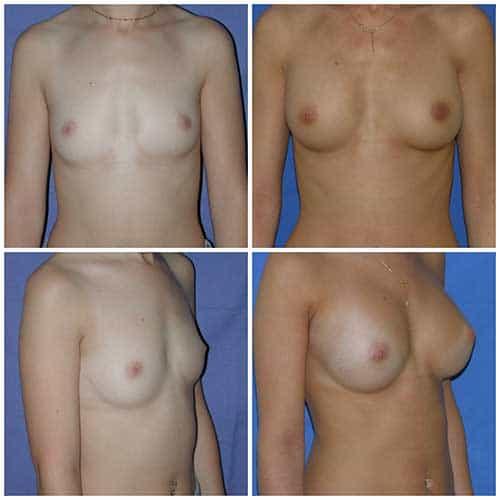 dr robert zerbib chirurgie plastique chirurgien esthetique paris 16 75116 chirurgie esthetique des seins augmentation mammaire par protheses mammaires paris 16 4