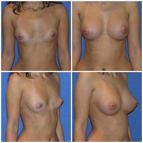 dr robert zerbib chirurgie plastique chirurgien esthetique paris 16 75116 chirurgie esthetique des seins augmentation mammaire par protheses mammaires paris 16 6