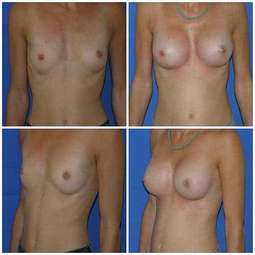 dr robert zerbib chirurgie plastique chirurgien esthetique paris 16 75116 chirurgie esthetique des seins augmentation mammaire par protheses mammaires paris 16 8